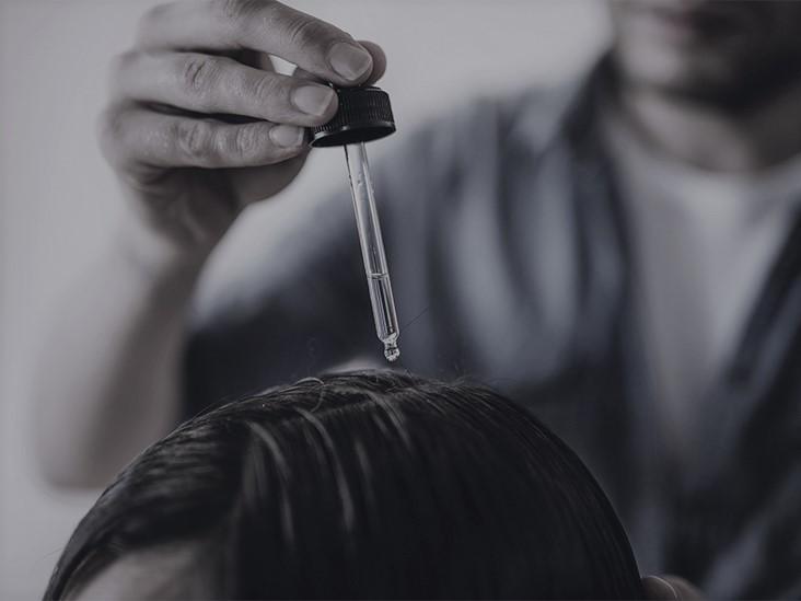 Миктоиглена мезотерапия за коса